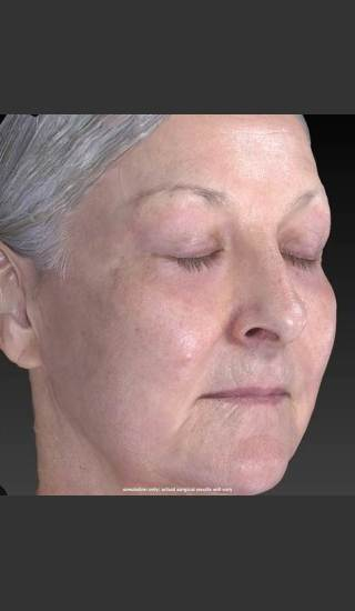 After Photo for Deep Wrinkle Reduction - Douglas Wu, M.D. - Prejuvenation