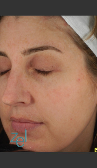 After Photo for Full Face Treatment of Skin Pigmentation - Brian D. Zelickson, M.D. - Prejuvenation