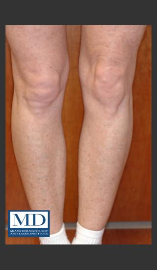 After Photo for Photorejuvenation Treatment 111 - Jill S. Waibel, MD - Prejuvenation