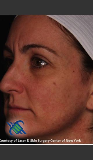 After Photo for Left Side Full Face Skin Rejuvenation - Roy G. Geronemus, M.D. - Prejuvenation