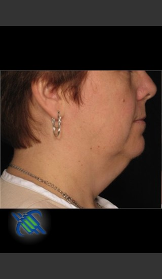 Before Photo for Treatment of Neck with Laser Liposuction - Roy G. Geronemus, M.D. - Prejuvenation