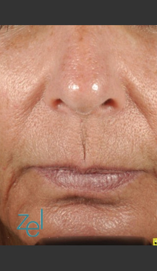 After Photo for Treatment of Peri-Oral Lines and Wrinkles - Brian D. Zelickson, M.D. - Prejuvenation