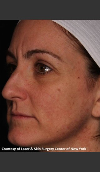 After Photo for Full Face Rejuvenation with Fraxel Dual - Roy G. Geronemus, M.D. - Prejuvenation
