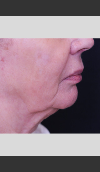 After Photo for Profound Lift Treatment of Jawline -  - Prejuvenation