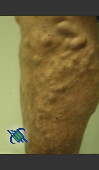Before Photo for Treatment of Lower Leg Veins - Roy G. Geronemus, M.D. - Prejuvenation