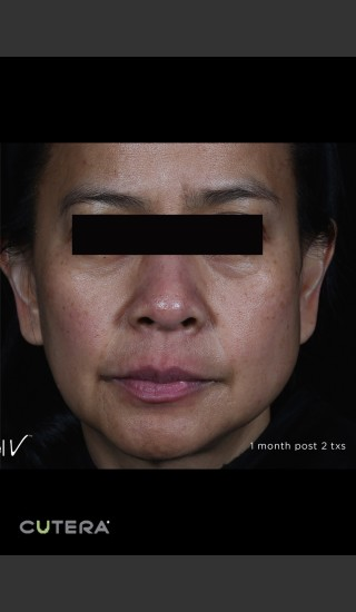 After Photo for Pigmented Removal Before & After Photo Front On Full Face -  - Prejuvenation