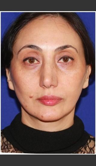 After Photo for Facelift - Case 23 - Konstantin Vasyukevich, MD - Prejuvenation