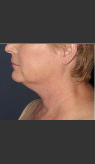 Before Photo for Facial Liposculpture - William F. Groff, M.D. - Prejuvenation