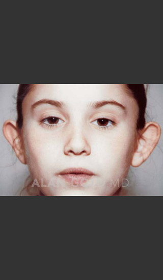 Before Photo for Otoplasty Case 887 - Alan Gold MD - Prejuvenation