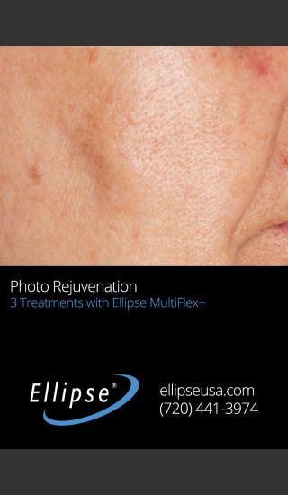 After Photo for Full Face Rejuvenation after 3 Treatments  -  - Prejuvenation