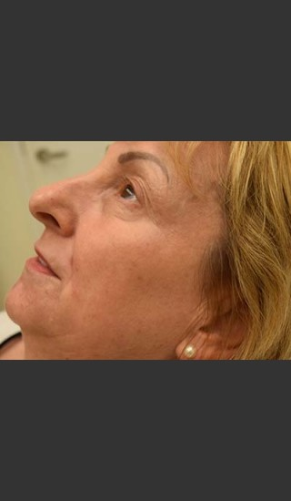 After Photo for Fraxel Laser Treatment for Pigmentation - Skin Cancer Specialists P.C. & Aesthetic Center - Prejuvenation