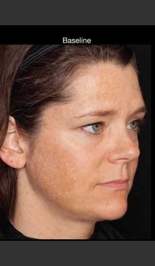 Before Photo for Hyperpigmentation - Professional Peel - Brian S. Biesman, MD - Prejuvenation