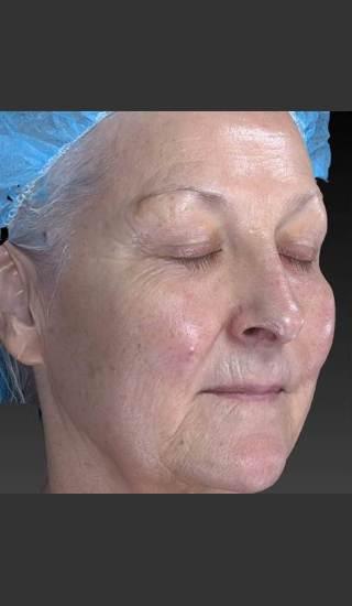 Before Photo for Deep Wrinkle Reduction - Douglas Wu, M.D. - Prejuvenation