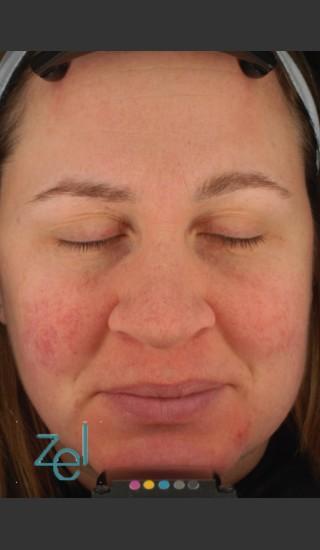 After Photo for Treatment of Facial Redness  - Brian D. Zelickson, M.D. - Prejuvenation