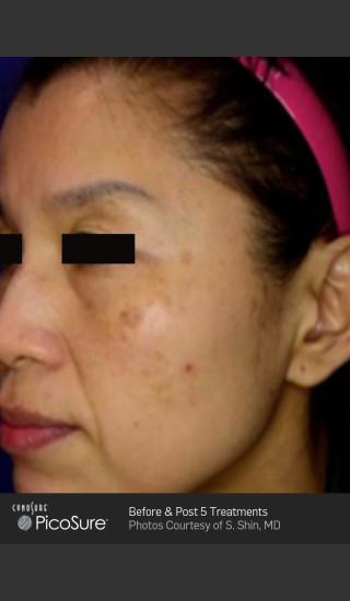 Before Photo for Wrinkle Reduction with PicoSure -  - Prejuvenation