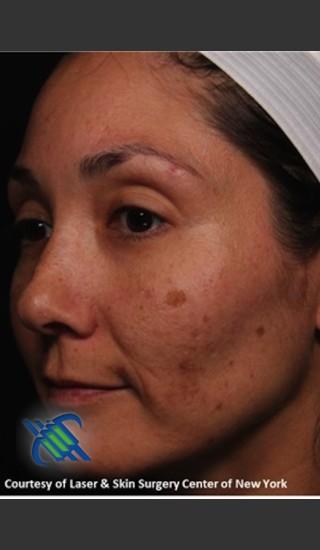 Before Photo for Pigment Facial Skin Rejuvenation - Roy G. Geronemus, M.D. - Prejuvenation