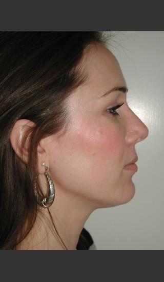 After Photo for Rhinoplasty Surgery  - James Newman - Prejuvenation