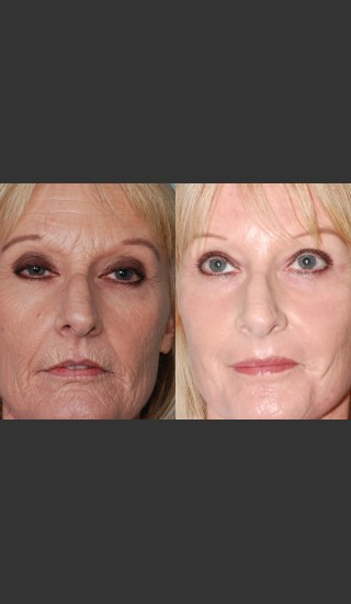 Before Photo for Laser resurfacing and laser eyelid surgery performed on same day. - Mark B. Taylor, M.D. - Prejuvenation