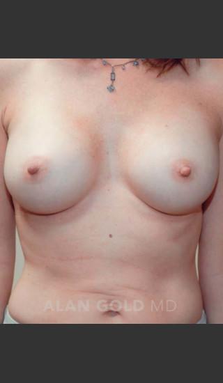 After Photo for Breast Augmentation 570 - Alan Gold MD - Prejuvenation