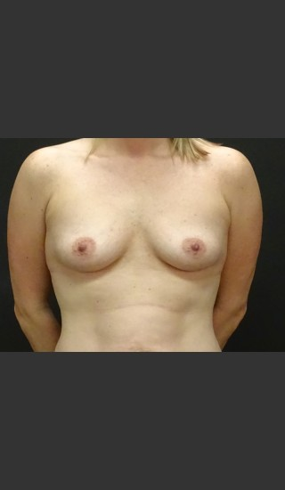 Before Photo for Breast Augmentation Case #1 - Gallaher Plastic Surgery & Spa MD - Prejuvenation