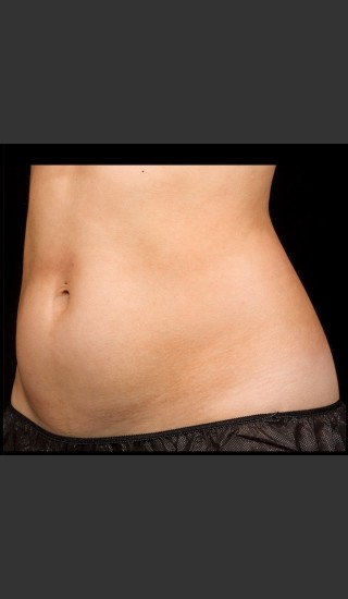 Before Photo for SculpSure Abdomen - Bruce E Katz, M.D. - Prejuvenation