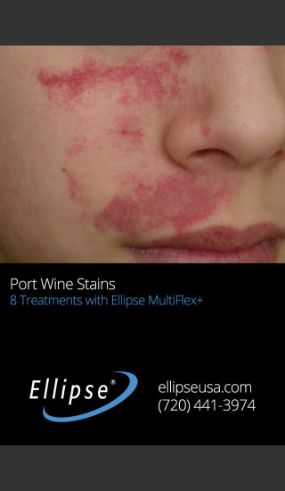 Before Photo for Treatment of Port Wine Stain on the Face -  - Prejuvenation
