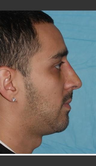 After Photo for Rhinoplasty - Case 17 - Konstantin Vasyukevich, MD - Prejuvenation