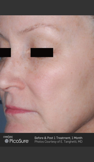 After Photo for Full Face Wrinkle Treatment With PicoSure -  - Prejuvenation
