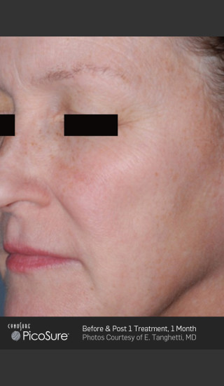 Before Photo for Full Face Wrinkle Treatment With PicoSure -  - Prejuvenation