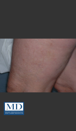 After Photo for Sclerotherapy Treatment 139 - Jill S. Waibel, MD - Prejuvenation