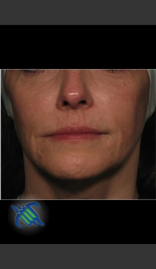 Before Photo for Facial Laxity of Lower Face with Profound - Roy G. Geronemus, M.D. - Prejuvenation