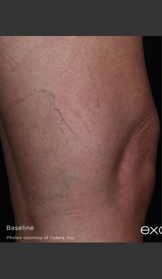 Before Photo for Leg Vein Clearance Using Excel V -  - Prejuvenation