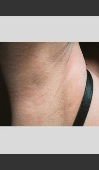 After Photo for Treatment of Underarms with Gentle Laser -  - Prejuvenation