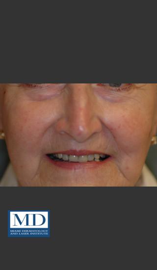After Photo for Rosacea Treatment 101 - Jill S. Waibel, MD - Prejuvenation