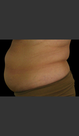 Before Photo for Body Contouring Treatment #121 -  - Prejuvenation