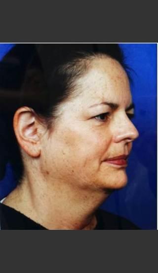 Before Photo for Infini Rhytides Treatment -  - Prejuvenation