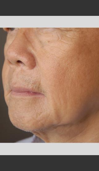 After Photo for elos Motif IR for Focused Wrinkle Treatment -  - Prejuvenation
