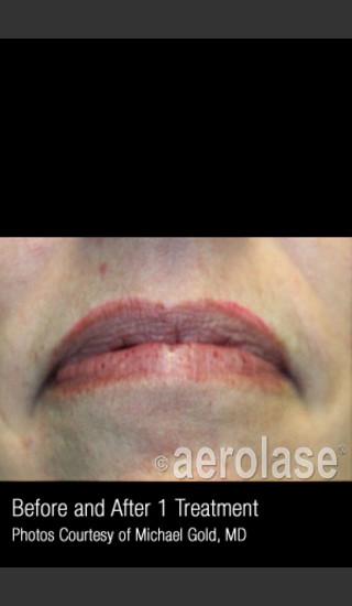 After Photo for Treatment of Facial Blood Vessels #337 -  - Prejuvenation