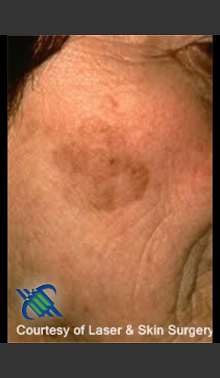 Before Photo for Treatment of Brown Spot on Cheek - Roy G. Geronemus, M.D. - Prejuvenation