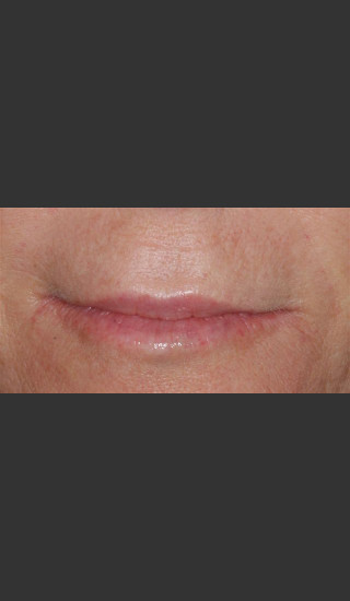 After Photo for Treatment of Perioral Wrinkles - Roy G. Geronemus, M.D. - Prejuvenation