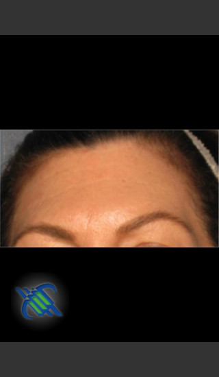 After Photo for Laser Treatment of Forehead Wrinkles - Roy G. Geronemus, M.D. - Prejuvenation