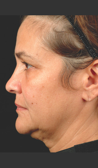 Before Photo for Thermage Procedure Before and After II -  - Prejuvenation