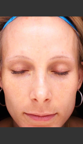 After Photo for Photoaging and Melasma  - Paul M. Friedman, M.D. - Prejuvenation