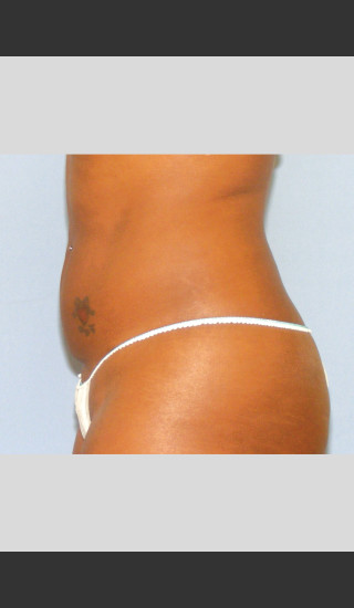 After Photo for UltraShape Focused Ultrasound Female Abdomen -  - Prejuvenation