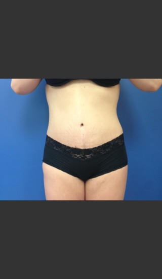 After Photo for Abdominoplasty (Tummy Tuck) Before & After - Dr. Josh Olson - Prejuvenation