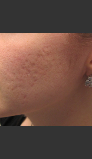 Before Photo for Infini Acne Scar Treatment #11 -  - Prejuvenation