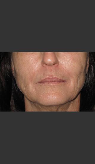 Before Photo for Infini Rhytides Treatment #15 -  - Prejuvenation