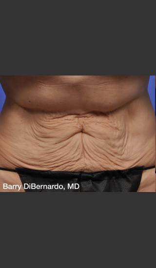 Before Photo for ThermiTight Treatment - Barry E. DiBernardo, MD, FACS - Prejuvenation