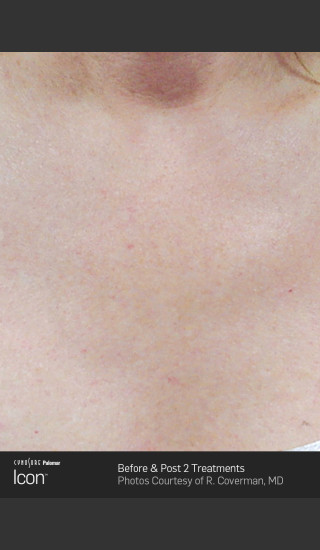 After Photo for Skin Revitalization of Chest Using Icon -  - Prejuvenation