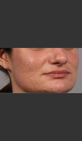 After Photo for 3DEEP Intensif Microneedling #2 -  - Prejuvenation